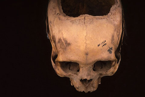 ancient skulls bearing evidence of trepanation